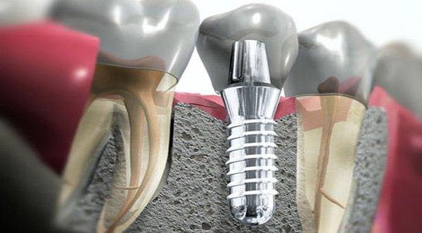 impianto-dentale-nell-osso